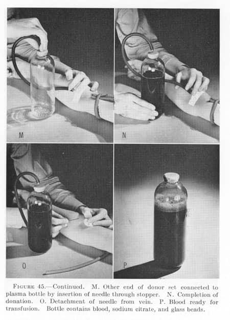 Plasma transfusion set